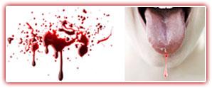 blood_streaked_saliva