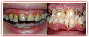 poor_oral_hygiene
