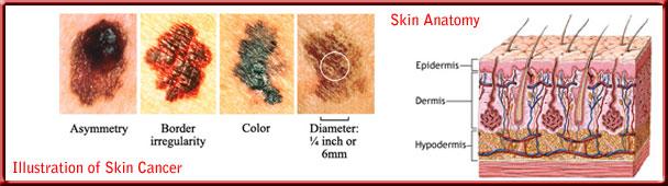 skin_cancer_toppanel