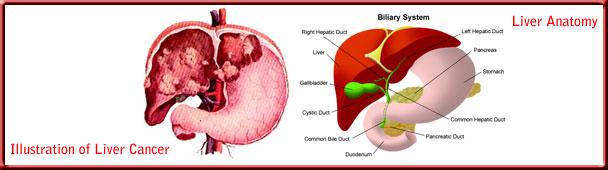 liver_cancer_toppanel